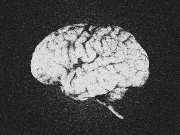 Complex Brain